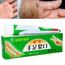 25g Hand Foot Crack Cream Heel Chapped Peeling Repair Anti Dry Crack Cream.