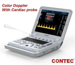Portable Color Doppler Ultrasound Scanner Machine Heart Exam Cardiac MicroConvex