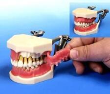 Periodontal Model Hygiene Model  Patient Education Dental Diseases  20 avail.