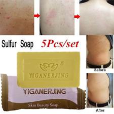5PCS Acne Blackhead Treatment Antibacterial Oil-control Remover Soap Chic