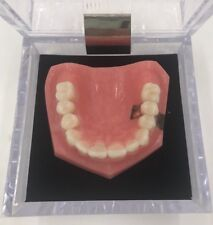 Kilgore Dental Implant Vs Bridge Denture Model 75-STI