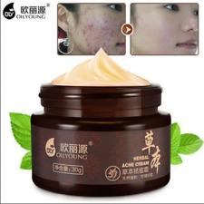 Herbal Acne Cream Anti Pimple Spot Acne Scars Blackhead Removal Cream Whiteni...