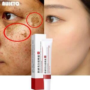 Whitening Freckle Melasma Dark Spots Melanin Anti-Aging Skin Care Face Cream
