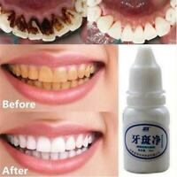 Zahnaufhellung Liquid Tooth Dental Bleaching entfernen Rauch Tee Flecken C2 P3P9