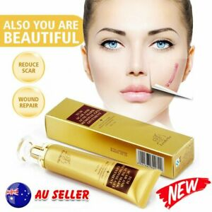 1/2PCS 30g TCM SCAR AND ACNE MARK REMOVAL GEL OINTMENT Acne Scar Cream %N