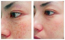 Eliminate Chloasma Pigmentation Spots in 3 Days by Dr Rong Chinese Herbs Powders