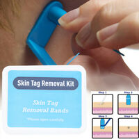 30Pcs Skin Tag Removal Rubber Bands Micro Band Non Toxic Face Care Mole Wart Pg