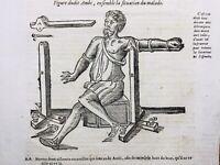 Chirurgie orthopédique en 1614 Médecine Ambroise Paré Nancy Vertèbre Médecin