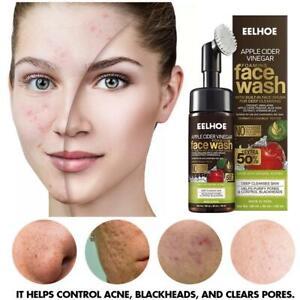 Skin Science Apple Cider Vinegar Foaming Face Wash (with built-in brush) - 150g