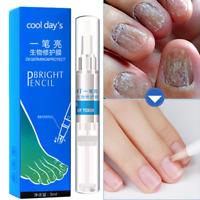 Nail Treatment Pen Paronychia Anti Fungal Infection Onychomycosis Nails Fix