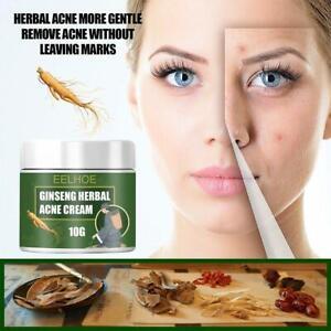 Herbal Acne Removal Cream serum Moisturizer Fade Oil Control Whitening Skin Care