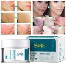 Plant Essence Anti-Acne Cream Moisturizing Oil-Control Remove Blackheads Pimples