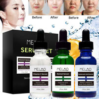 3Pc Vitamin C Serum for face w/ Hyaluronic Acid - for Micro Needle Derma Roller