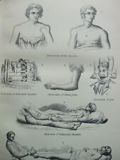 ANTIQUE PRINT C1870'S DISLOCATIONS ENGRAVING SHOULDER ELBOW JAW HIP MEDICAL BODY