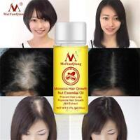 Huile puissante d'essence de croissance de cheveux d'extrait naturel de 20ml FR