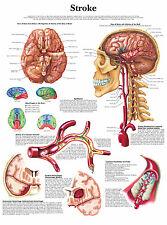 Cartel médico A3 – Ictus (libro de texto médico enfermera enseñanza Anatomía patológica)