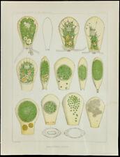 1879 - Planche médecine amibe - Hyalosphenia Papilio - Leidy - biologie