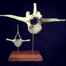 Osteologie - Vertèbres montées sur socle
