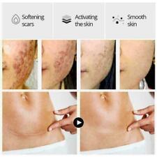 Vibrant Glamour Crocodile Repair Scar face serum Removal Q0G4 Scar Acne T2Z8