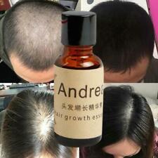 Hair Growth EssenceAndrea Liquid Oil Natural Organic Regrowth Treatment