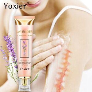 Yoxier Repair Scar Cream Acne Scar Stretch Marks Skin Care Pigmentation Correcto