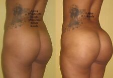 Buttock Butt Booty Enhancement CREAM BEST ON MARKET RESULTS IN 1 Bottle 8OZ