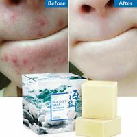 100g Sea Salt Soap Goat Milk Remove Acne Oil-Control Clean Skin Shrinks Pores
