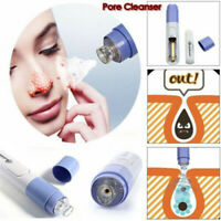 Electric Skin Care Facial Pore Cleanser Blackhead Acne Vacuum Cleaner Remover AU