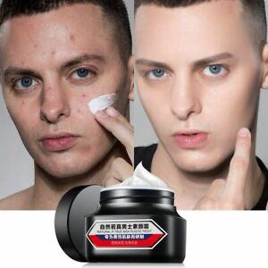 Men's Cream Skin Whitening Moisturizing ELIMINATES Acne Spots Pimples Ointment