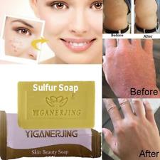 Natural Sulfur Acne Anti Fungus Bath Shower Soap Health Care Hotel Home Bathroom