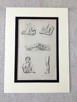 1880 Stampa Vittoriano Mediale Diagramma Primo Aiuto Osso Fratture Medicina