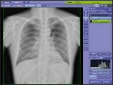 Digital Rad Room X Ray Machine Dr Panel