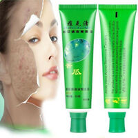 30g Face Skin Repairing Acne Cream Oil Control Acne Remover Whitening For Face A