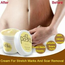 Newly Cream Take Care of Your Body Wrinkles - Stretch Marks Scar Removal