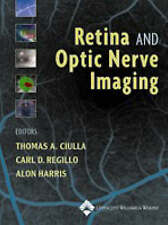 Retina and Optic Nerve Imaging