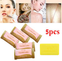 5X Sulfur Soap oil-control Acne Treatment Blackhead Remover Cleanser Skin Care A