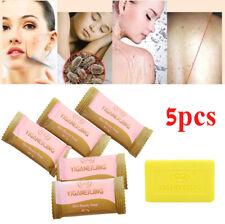 5x Sulfur Soap oil-control Acne Treatment Blackhead Remover Clean Skin Care BT