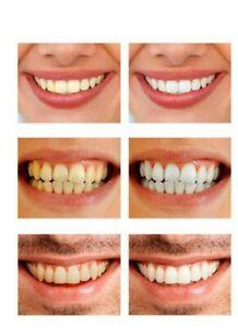 Zahnaufhellung Bleaching Set weisse Zähne mit Profi-Material beste Ergebnisse !