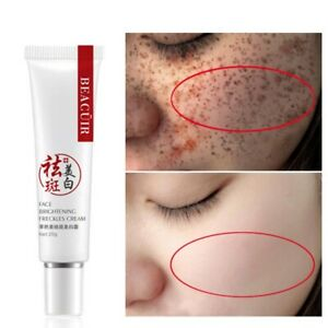 Freckle Whitening Face Lifecell Collagen Repair Spots Age Moisturizer Cream US