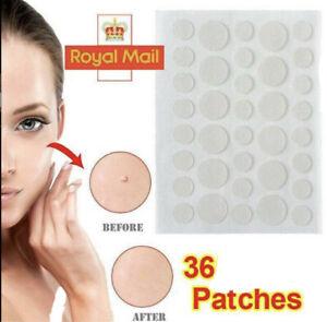 36-72-144 pcs Acne Patch Tag Hydrocolloid Pimple Spot Acne Patch Plaster * UK *