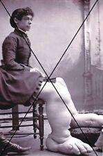"""curiosité , oddities : photo """" femme difforme"""""""