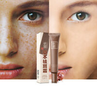 Freckle Cream Remove Melasma Anti Dark Spot Removal Acne Skin Whitening Care