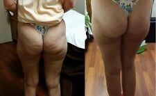 **Lipo Slimming Gel**Firms Cellulite*Fast Results*Made With Natural Ingredients*