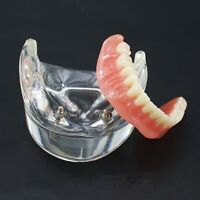 Dental Teeth Typodont Model Lower Jaw Inferior Overdenture Removable 2 Implants