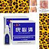 Médico Tu Kill Remover Etiqueta de piel Mole Genital Wart Remover Youbiqing PDQ
