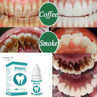 New Teeth Whitening Essence Remove Plaque Stains Hygiene Cleaning Oral Care Hot