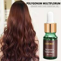 Fast Hair Growth Dense Regrowth Ginger Serum Oil Anti Loss Treatment Essence TR