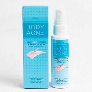 Mistine Acne Pimple Treatment Spray Body Double Action Anti Back Butt Blemish