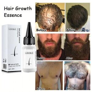 Fast Hair Growth Serum Beard Oil Axillary and Chest Hair Regrowth Fluid Longer