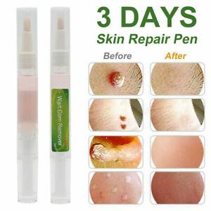 Skin Tag Removal Treatment Cream Face Care Mole Corn Wart Remover Natural Pen UK